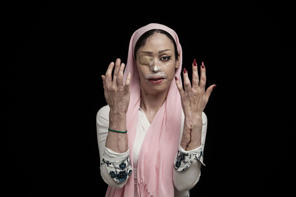 © Asghar Khamseh / SWPA (L'Iris d' Or, Photographer of the Year): Fire of hatred